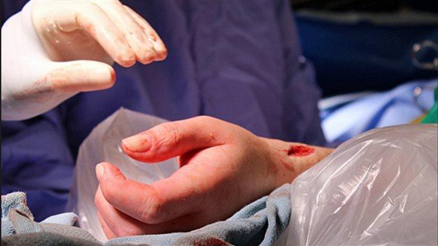 加首例手臂移植 由多伦多医生完成