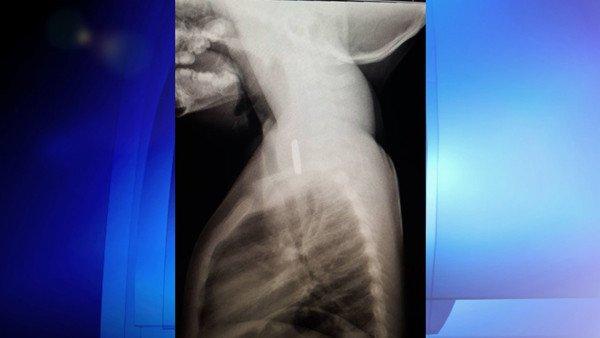 加国庸医太多:2岁女孩喉咙内卡电池4天