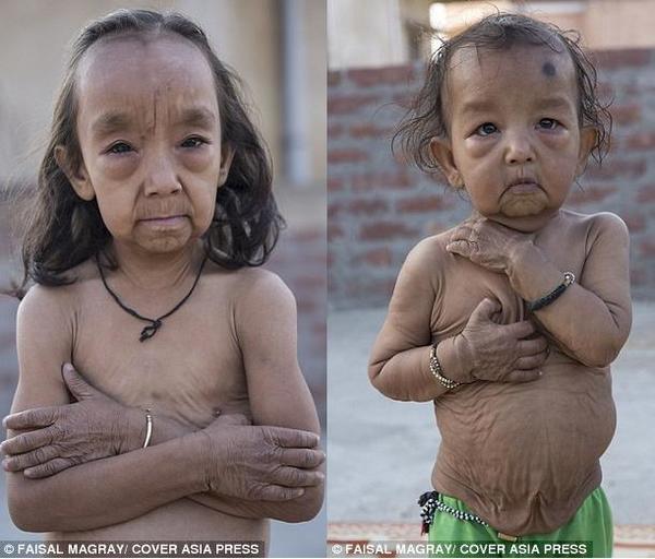 印度:7岁姐姐和1岁弟弟患早衰症似古稀老人(图)