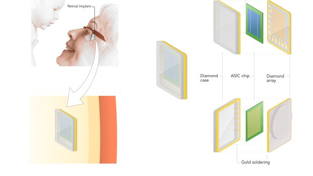 ibionics-diamond-eye-implant
